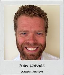Ben Davies - Acupuncturist